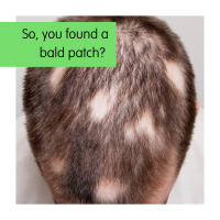 So, You Found a Bald Patch?
